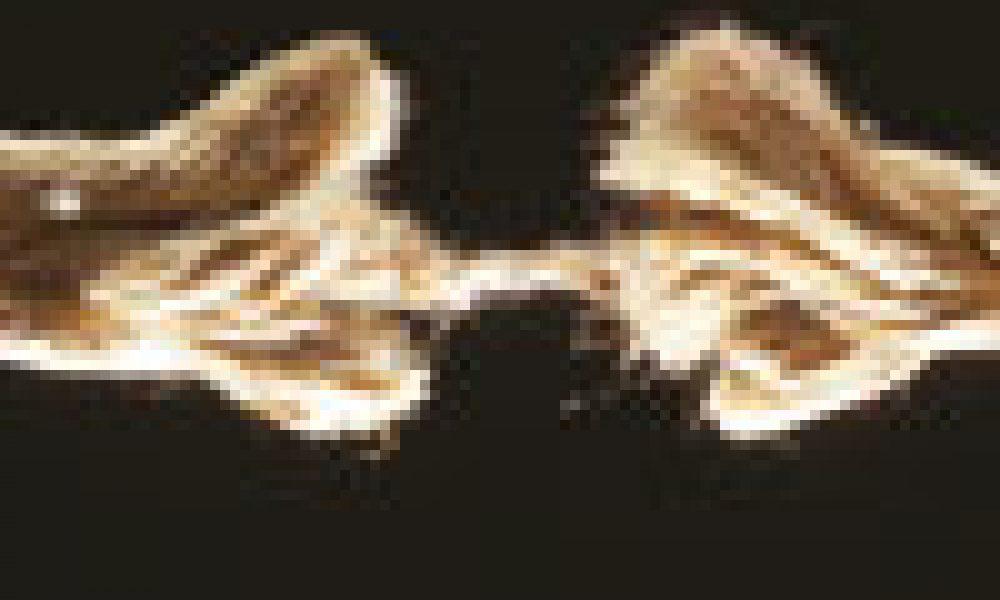 La morte cerebrale è ancora vita?