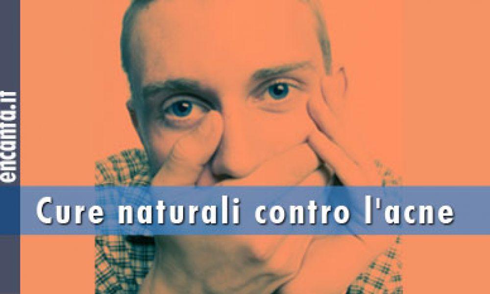 Cure naturali contro l'acne